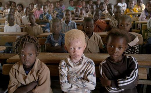 albinos-teaser_0